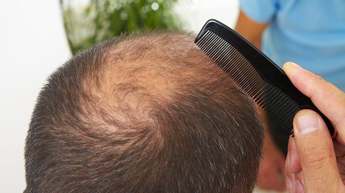 Can Mold Cause Hair Loss